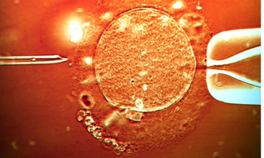 embryo transfer